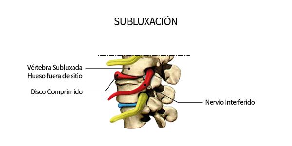 subluxacion vertical quiropráctico medellin Atlas