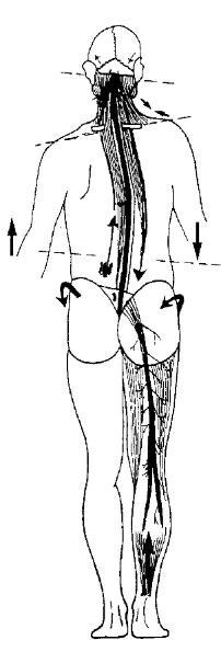 Tensión Neuro-meníngeas fibromialgia y quiropráctica