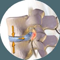 Hernia de disco discal quiropráctico